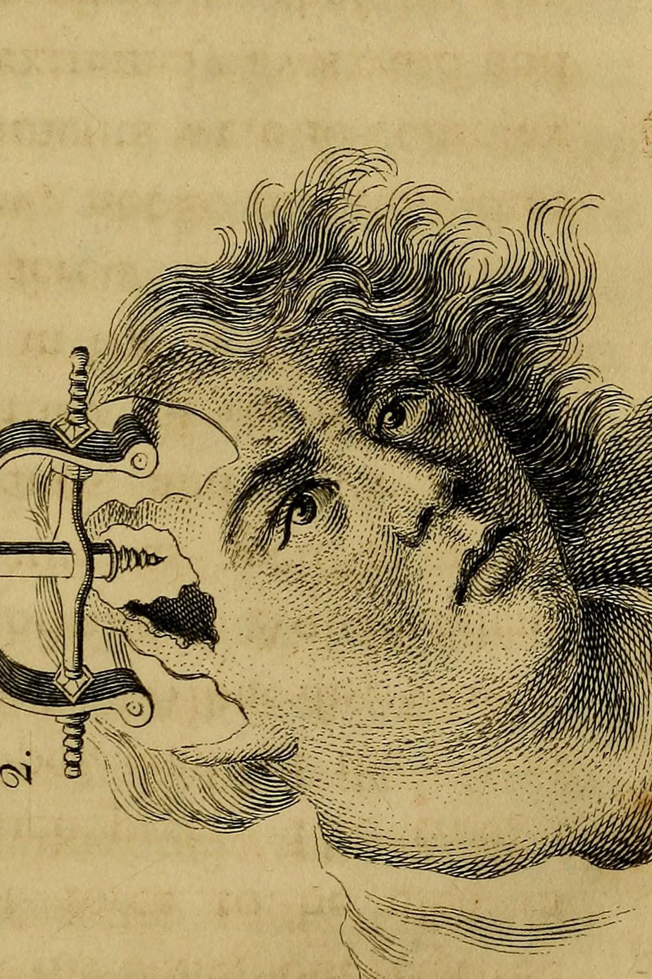 intubate_image-1-1